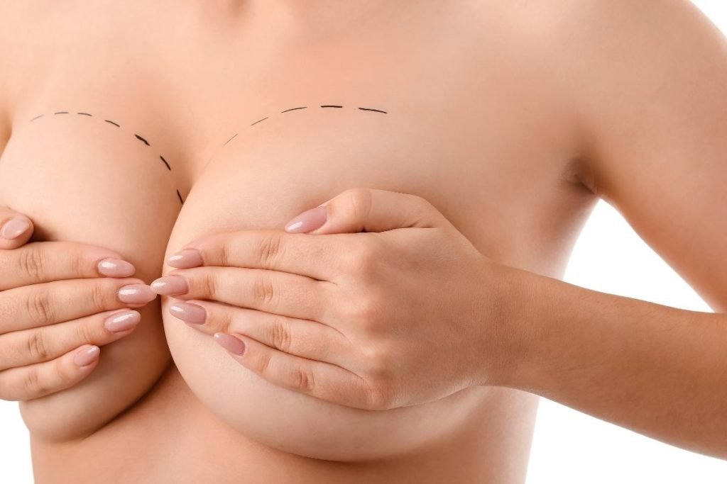 Powiększanie biustu implantami – czy warto?